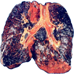 smokers-lung-picture-3